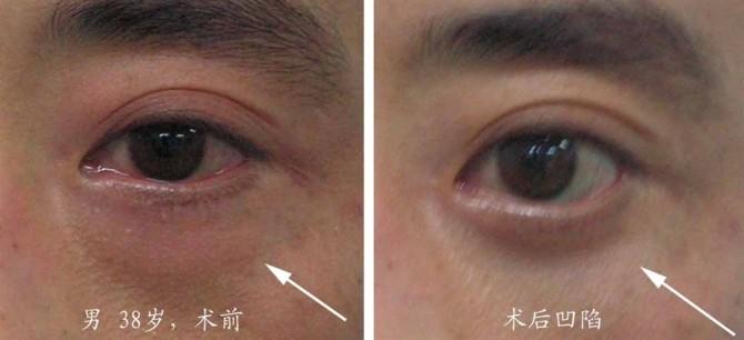 眼袋手术后眼球充血图_超声法祛眼袋,眼底凹陷是手术失败了吗?